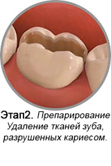 http://www.stom32plus.ru/sites/default/files/site/newser/CarSt2.jpg