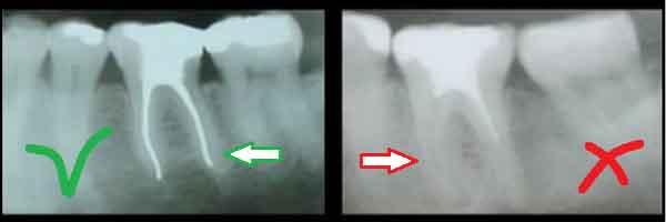 Чистка каналов в зубе больно или нет